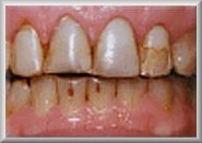 Before Tooth Veneer Procedure